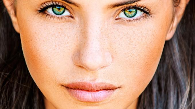 Despigmentación: Aún Estás A Tiempo De Eliminar Manchas E Impurezas Del Rostro