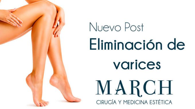 Elimina Tus Varices En Clínica March