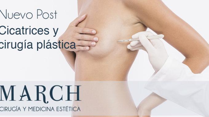 Cicatrices Y Cirugía Plástica