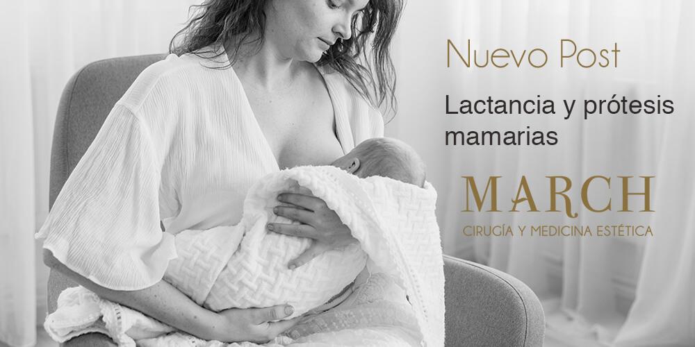 ¿Se Puede Dar El Pecho A Tu Bebé Con Prótesis Mamarias?