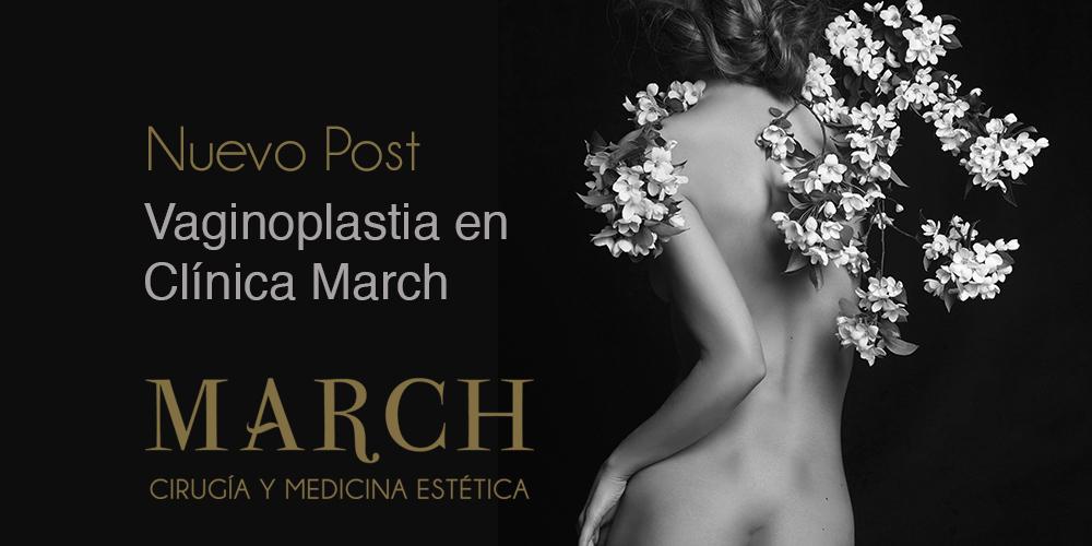 Vaginoplastia En Clínica March Marbella
