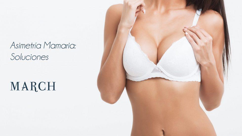 Soluciones A La Asimetría Mamaria, Cirugía De Pechos Sutil Y Natural