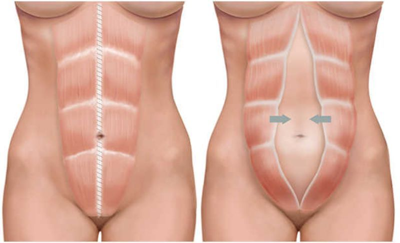 diferencias abdominoplastia liposuccion